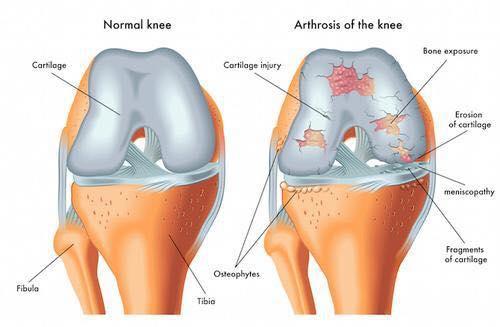 Biomedic-healthcare-magnetoterapia-artrite